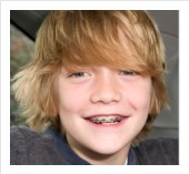 kids braces in San Jose