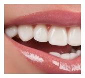 dental crown San Jose