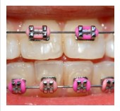 Managing Accidents to Dental Braces or Appliances