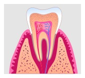 root canal in San Jose