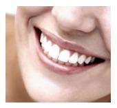 veneers, cosmetic dentist in San Jose